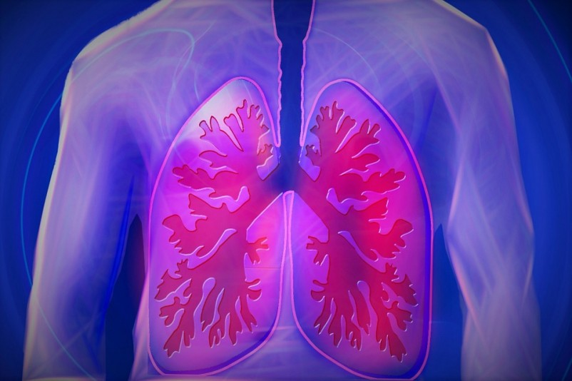 Top 10 Best Mesothelioma Lawyers & Attorneys