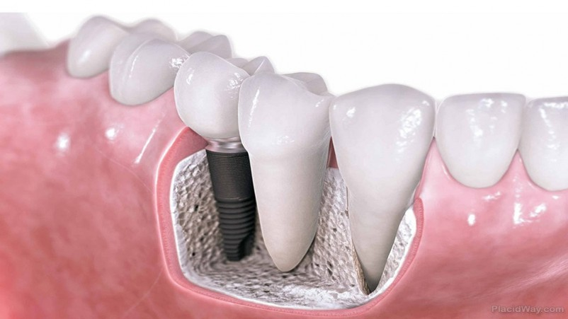 21 Things You Must Know About Dental Implants