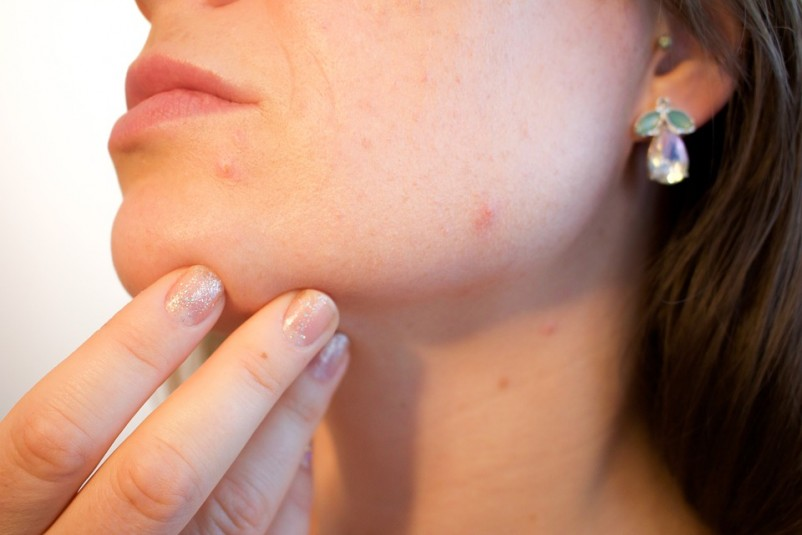 10 Things You Must Know About Acne