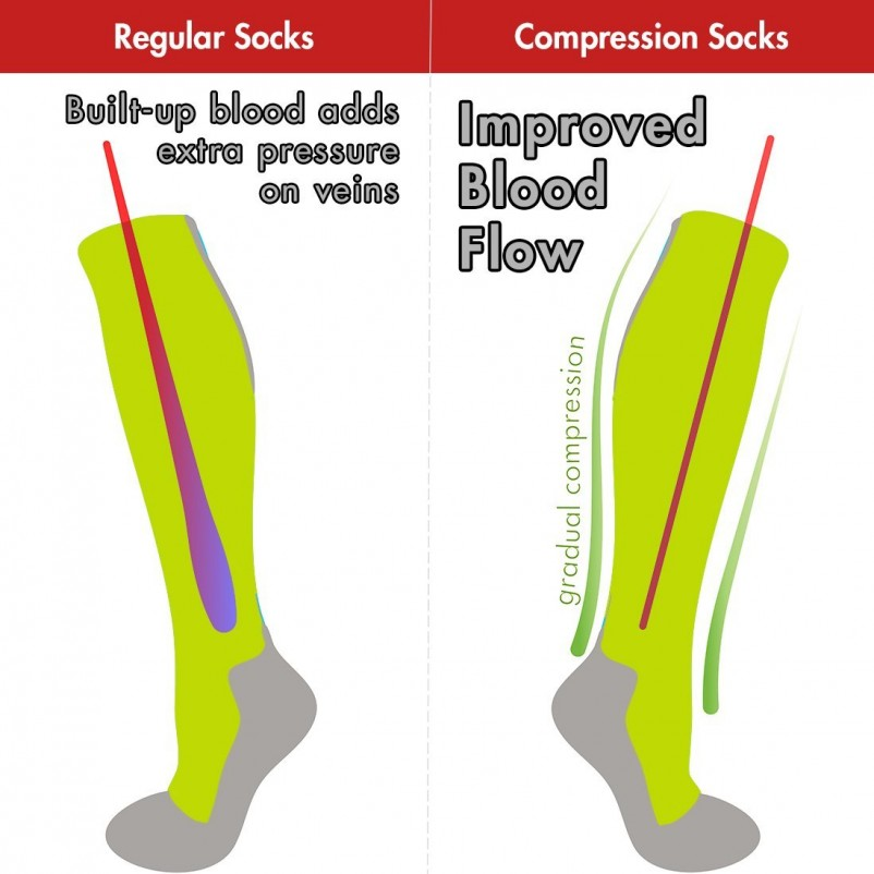 Best 5 Benefits of Wearing Compression Socks for Men and Women